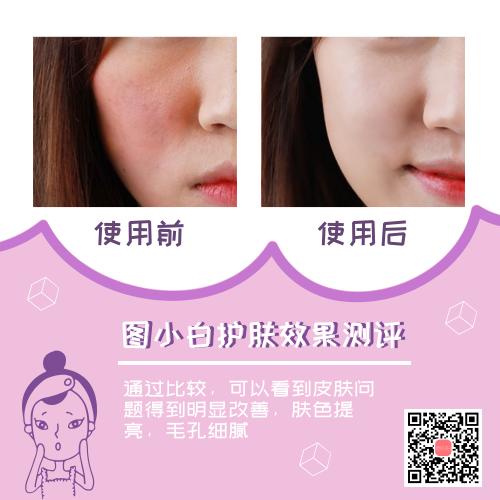 紫色卡通護膚效果對比圖